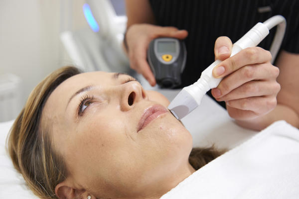 Is cost of derm light laser treatments worth it? How long will they delay wrinkling?