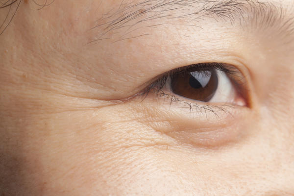 Can crossed eyes be cured through prescription glasses?