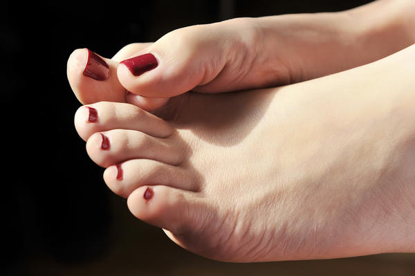 I was born with hallux valgus (bunions) on both of my feet. My identical twin sister does not have this deformity. How can this happen?