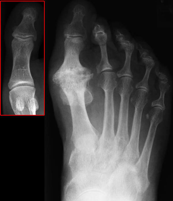 If you have beginnings of hallux rigidus with no pain, how many years might it be before you need surgery.