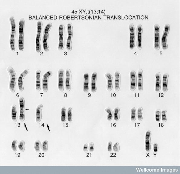 What is the definition or description of: chromosomal disorders?