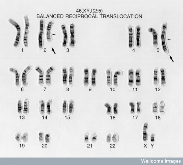 Are chromosomal abnormalities, such as trisomy, confined to certain parts of the body?