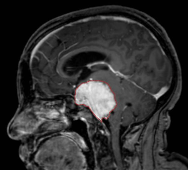 Can you tell me is gamma-knife surgery a viable alternative to a craniotomy?