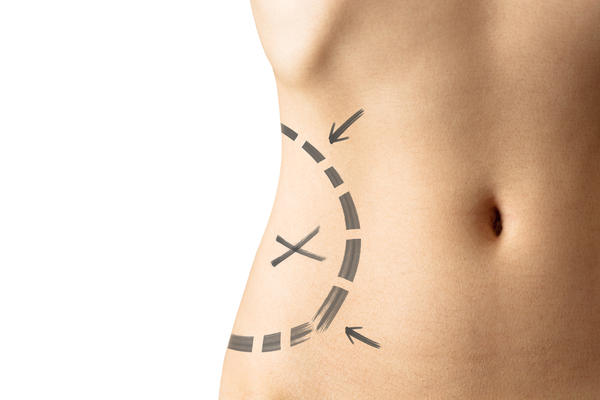 How much lipo is done on the flanks with a tummy tuck?