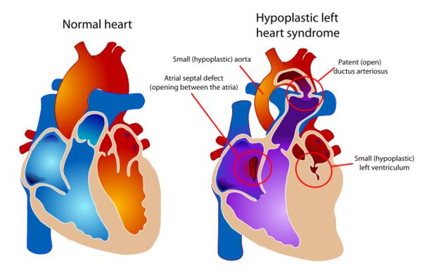 What are the symptoms of a hypoplastic left heart?