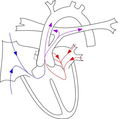 What are the common symptoms of truncus arteriosus?