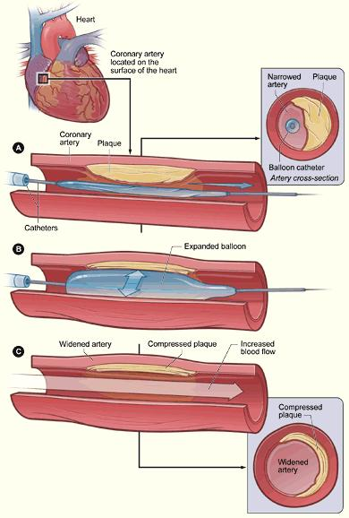 Is percutaneous transluminal coronary angioplasty a very common procedure?