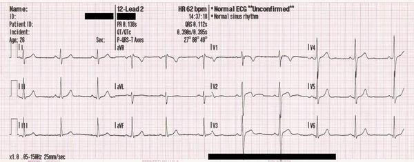 What would a person see on an EKG of someone who is having a heart attack?