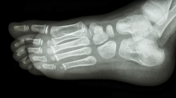 How long is the recovery for foot joint surgery?