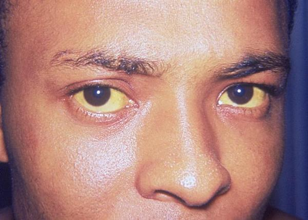 How advanced is cirrhosis when skin and eyes are yellow?