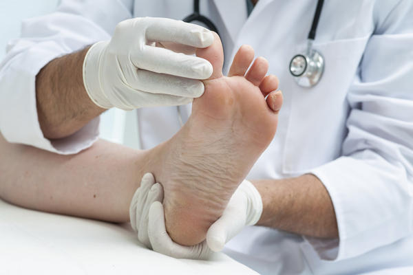 What can cause a spontaneous avulsion of a toenail without trauma?