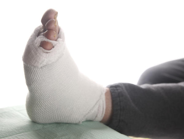 Does hyperuricemia causes feet pain ?