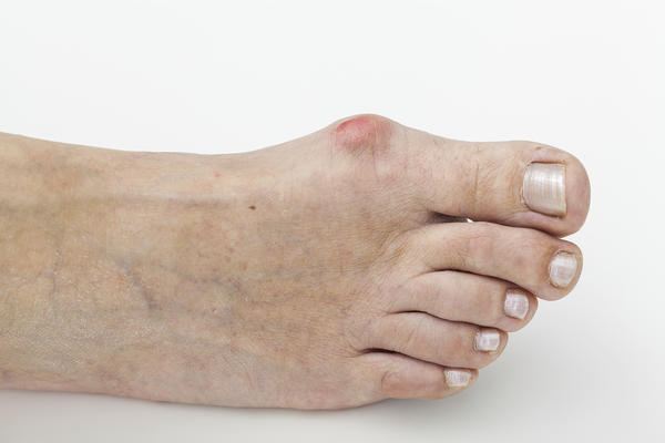 Could a chronic wound (localized scleroderma) on dorsal aspect of foot lead to tendonitis?