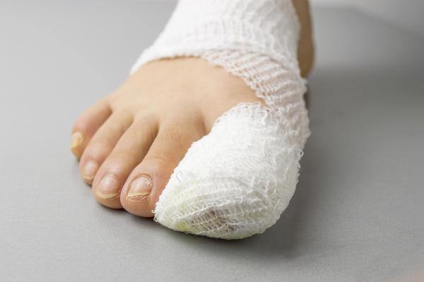 What causes the swelling of the feet?