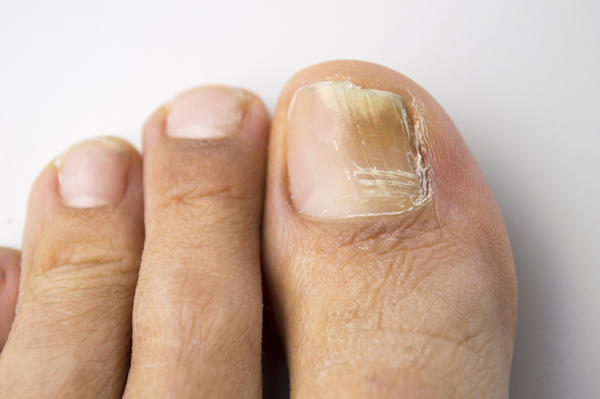 Can the supplement vitamin b-12 cause painful (widening) of blood vessels to the skin (feet) resulting in skin feeling hot?