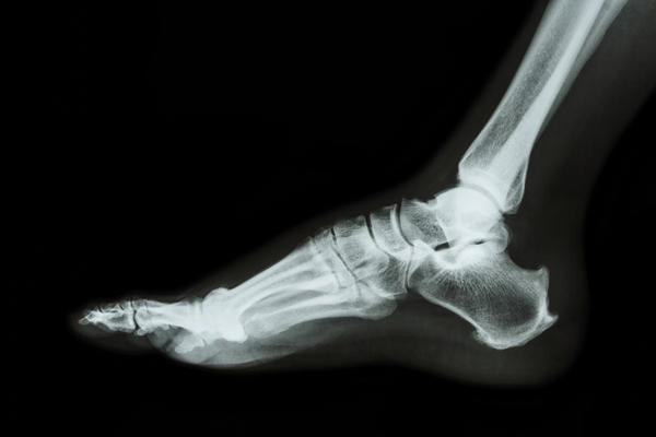 How should I treat a stress fracture in my foot?