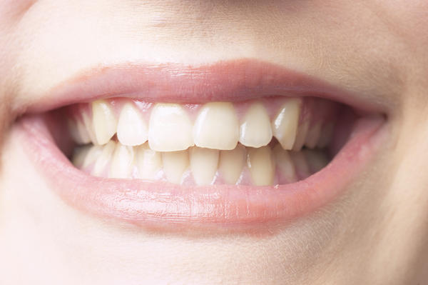 Which viral diseases cause bumps inside the mouth on the upper gums?
