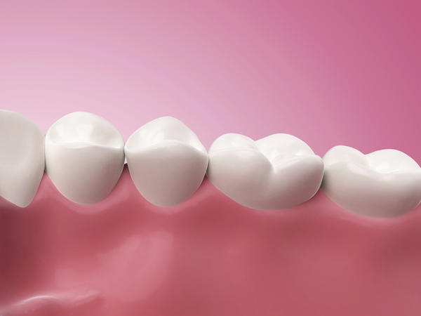 What is ceretoma in the lower gums? What causes it?