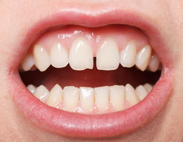 How do I remove the hard tartar buildup on my gums ?