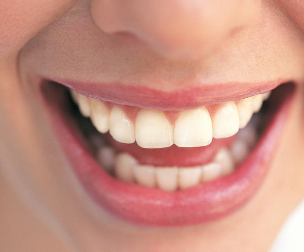 How long does sensitive gums associated with pregnancy last?