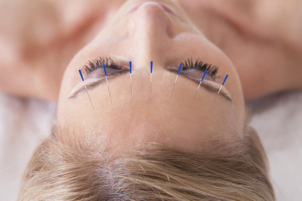 What are the acupuncture points for back, jaw and neck pain ?