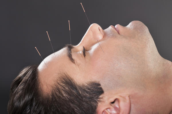 Does acupuncture helps in alopecia areata?