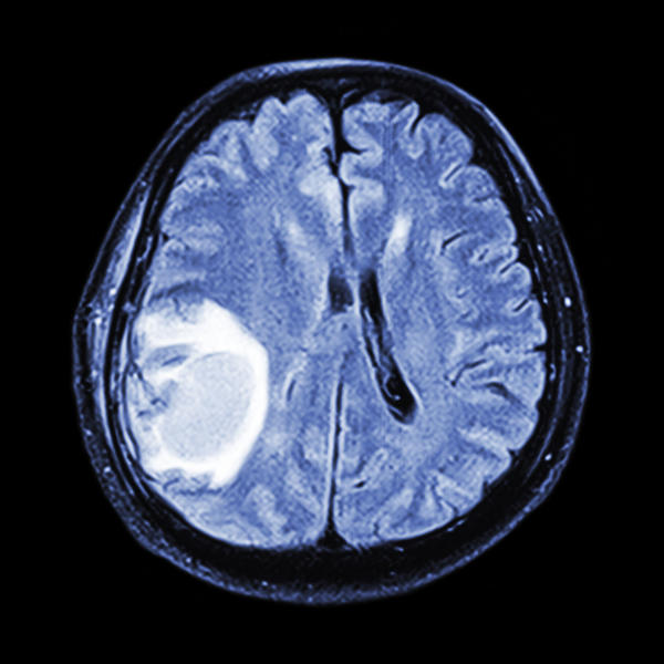 How concerning is encephalomalacia to me?