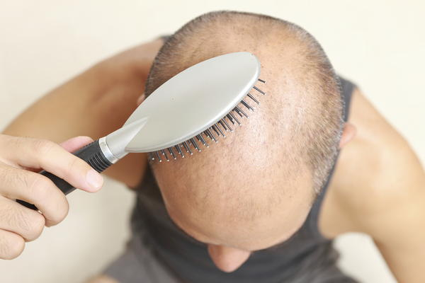 What could cause hair loss at the age of 23?