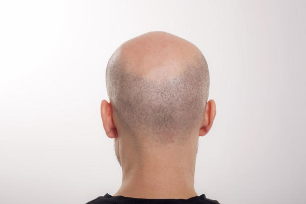 Have hairloss but there are small hair follicles that don't grow into full formed hair and fall off. Any way to prevent this with natural suppliments?