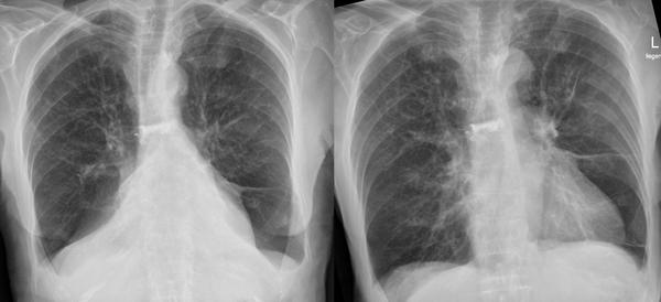 "Hi,had spontaneous pneumothorax on 2010 .I had a xray last week & shows ""lungs are hyperinflated w a diffuse increase in lung markings .is it normal?"