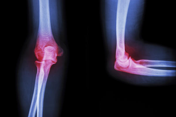 Why do I feel joint pain if my sed rate is normal?