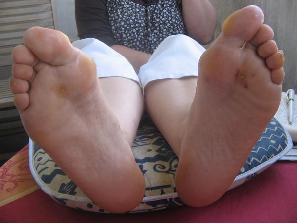 Do plantar warts have anything to do with sexual disease?