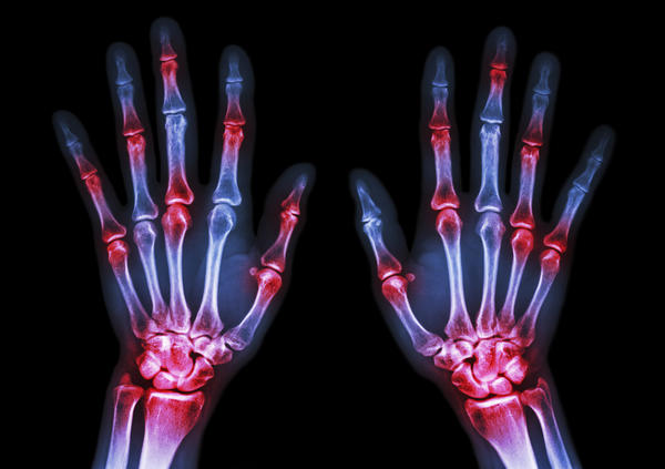 How common is joint inflammation?
