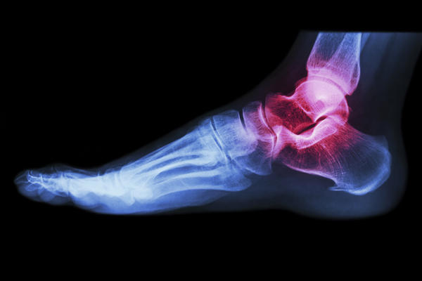 How does an anterior ankle sprain cause post tibial tendinitis?