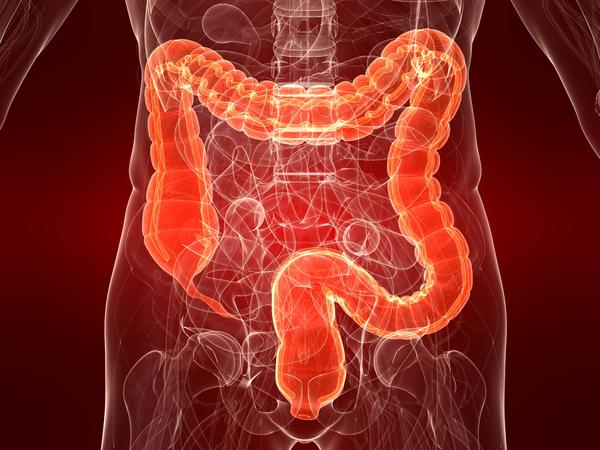 What is colitis?