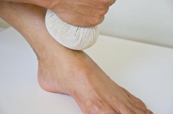 How long does it usually take to heal a minor sprained ankle?