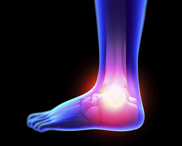 What does an ununited avulsion fracture in the right ankle mean?