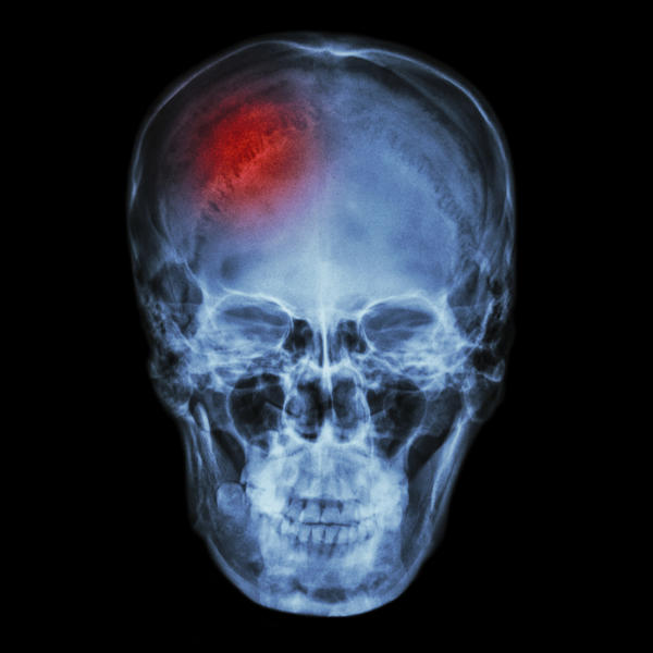 How many days after a fall and suffering a possible concussion are you at risk of complications, like brain bleed or swelling?