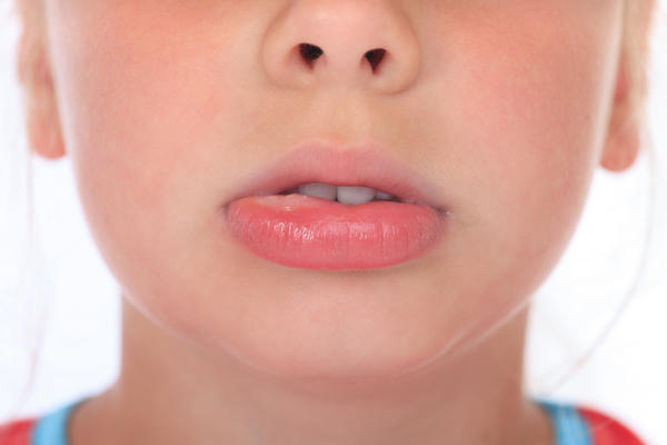 What could cause itchy spots and lip swelling?