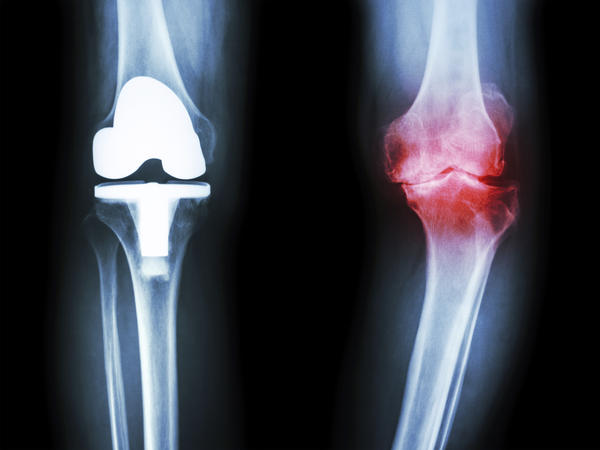 What to do if i want to know what is total knee replacement surgery and how much it is beneficial?