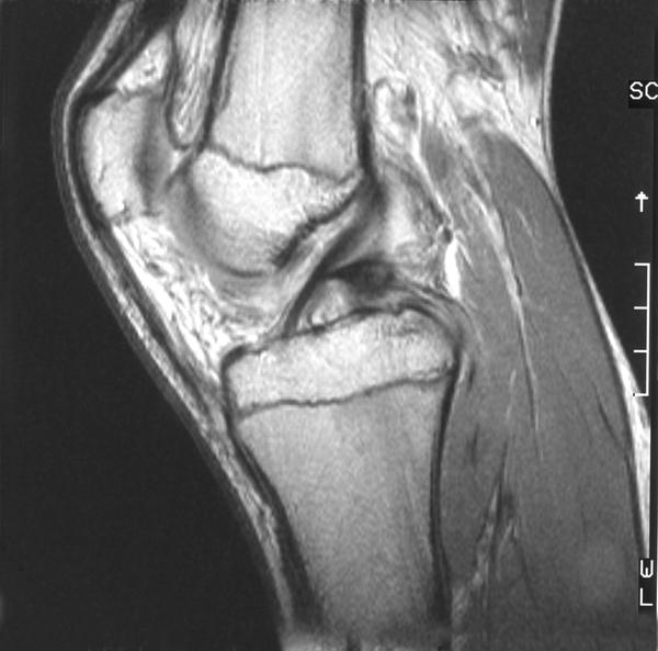 What is the ligament that is closers to fold on the left on the left side of the knee?
