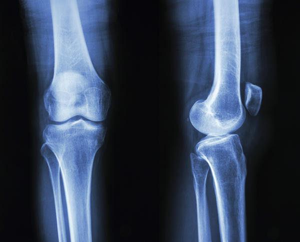What's the best treatment for a mild knee sprain and slight inflammation on the inner side?