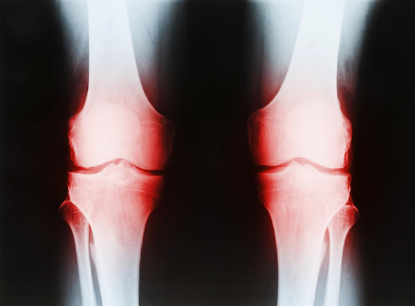 What are the treatment options for cartilage wear in my knee?
