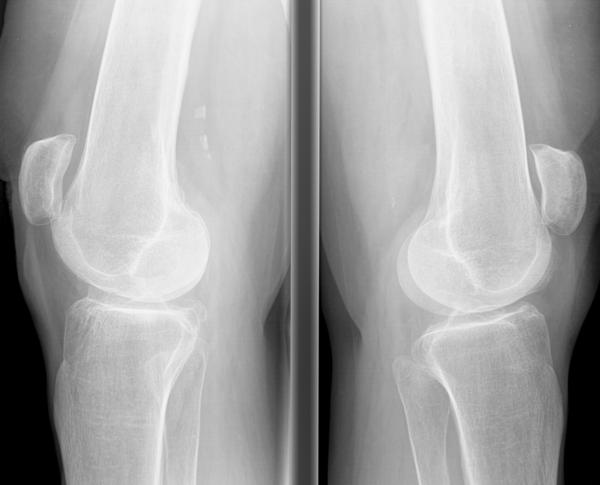 What are symptoms of a sprained knee?
