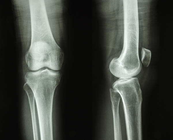 Is it normal to have some popping in knee joints when getting back to being active after being bedridden for 2-3 months?