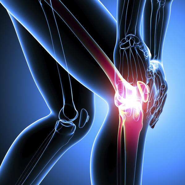 How can I do simple physical therapy exercises at home to strengthen the knees?