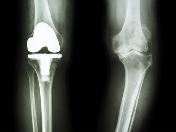 Is it normal for knee to pop 6 weeks after meniscus surgery?