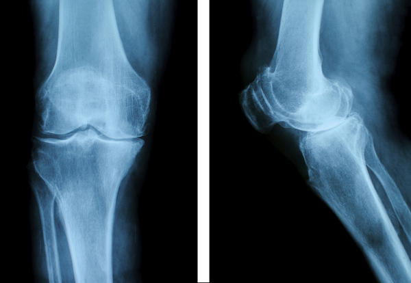 How long does it take for a broken knee to heal?