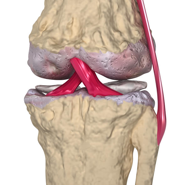 What are the symptoms of a torn meniscus of knee?