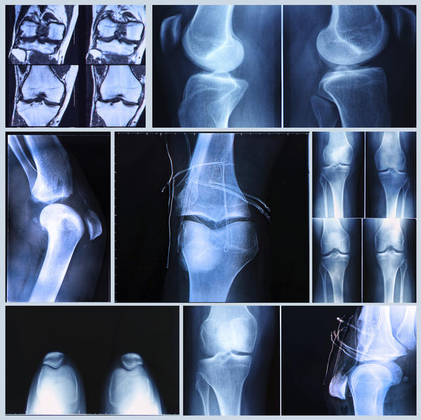 How long does it take to recover from neuropraxia due to a dislocated knee?